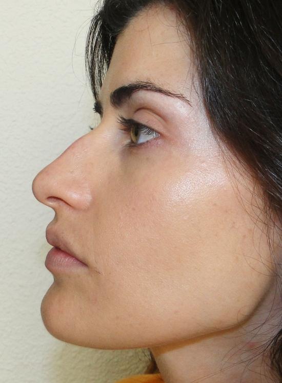 Piel maquillada con flash